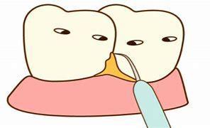 歯茎が下がる  歯石とり イラスト に対する画像結果